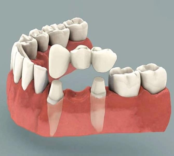 Bridges, Partials, and Dentures